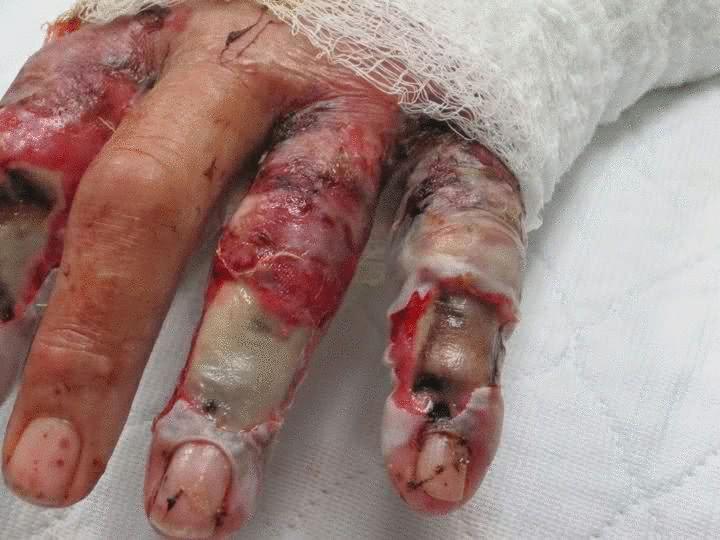 Последствия укуса гремучей змеи