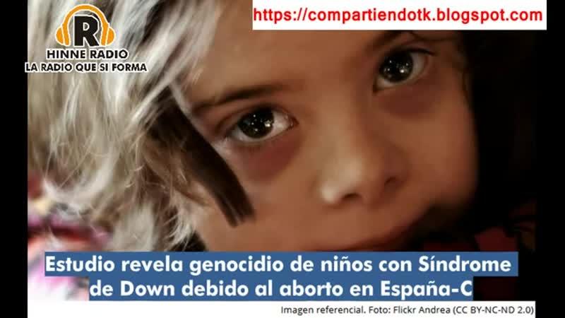 Estudio revela genocidio de nios con Sndrome de Down debido al aborto en Espaa