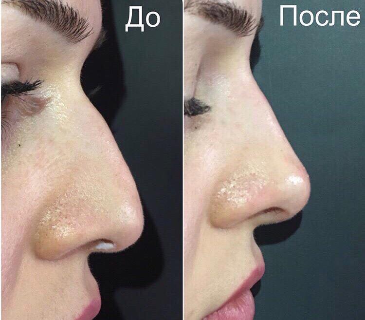 ЛАЗЕРНАЯ ЭПИЛЯЦИЯ - ЛУЧШИЙ способ удаления волос: