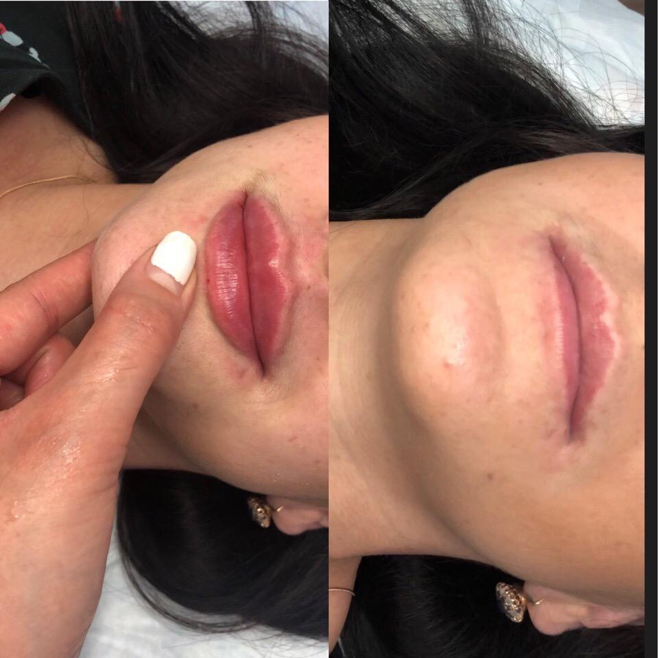 Приглашаем милых женщин по Акции на увеличение губ 5500 и плюс 500 анестезия , ламинирование ресничек 600 , ультразвуковая чистка 1300 рублей принимает врач косметолог