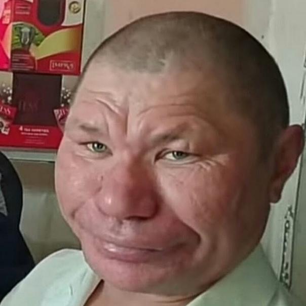 Олег Монгол влюбился! В instagram набирает популярность дама, которая неудачно сделала пластическую операцию.