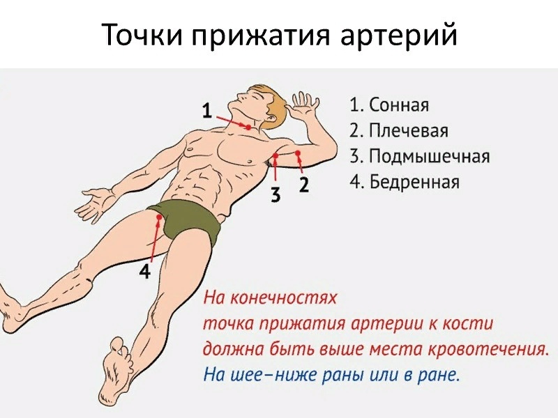 Особенности остановки кровотечения при ранениях шеи и травматических ампутациях конечностей, изображение №1